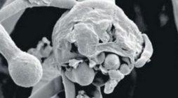 Native of Malappuram dies of black fungus in state